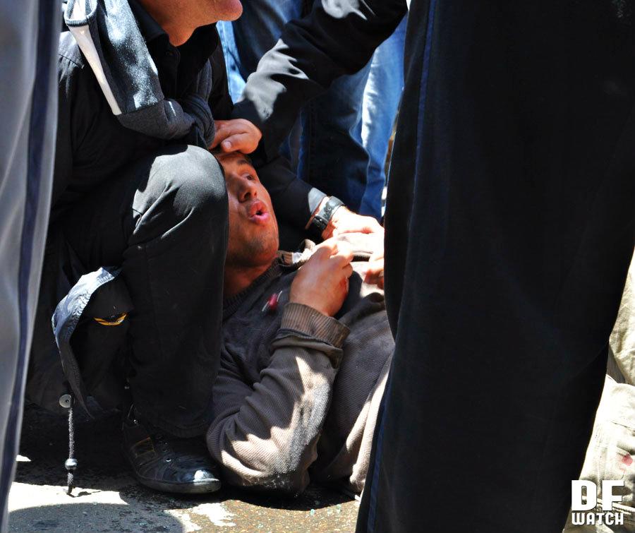 injured person 2013-05-17